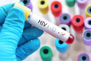 Operasi Pekat Amankan Puluhan Miras dan Belasan PSK, 3 Positif HIV
