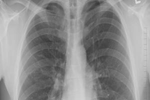 Toss-TB Untuk Eliminasi  Penularan TBC  di Jawa Barat