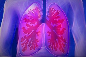 Kenali Penyebab dan Gejala TBC Paru